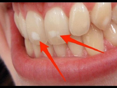 Giai đoạn răng chớm sâu sẽ xuất hiện những vết trắng đục bất thường trên răng