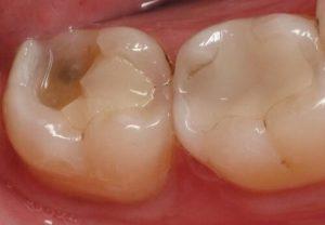 Hình ảnh sâu răng số 7 hàm trên