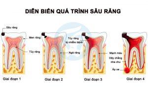 Qúa trình của sâu răng