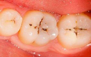 Răng hàm là trường hợp dễ bị sâu nhất, biểu hiện ban đầu thường là xuất hiện những chấm đen trên các rãnh răng