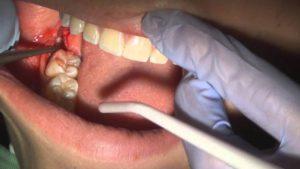 sâu răng khôn nguyên nhân chủ yếu là do không được vệ sinh sạch sẽ