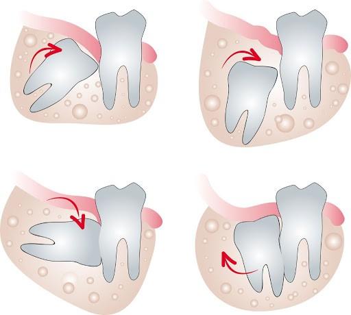 răng khôn bị sâu sảy ra những rủi ro gì?