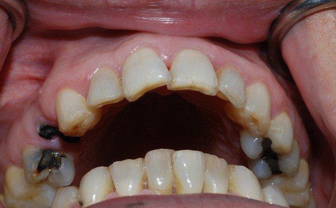 Hình ảnh sâu răng hàm trên