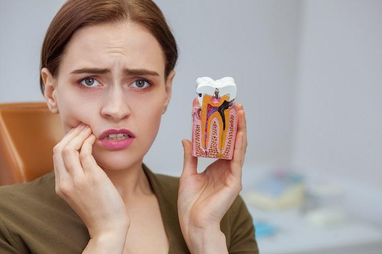 Sưng lợi do sâu răng