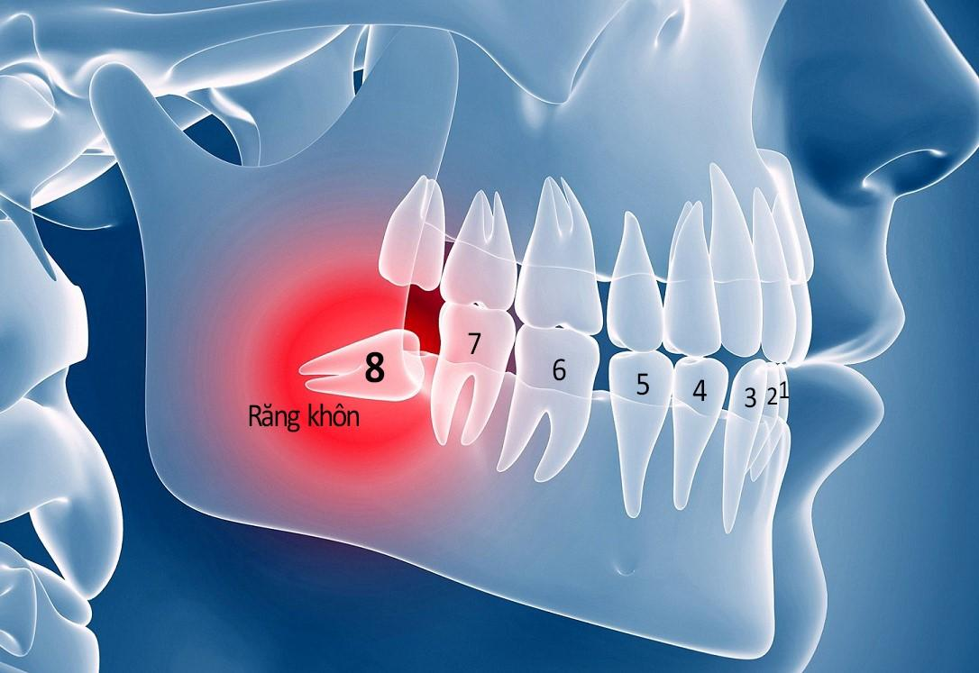 Những biến chứng khi mọc răng khôn