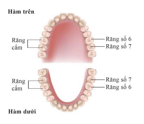 Răng cấm và răng khôn có phải là một không?